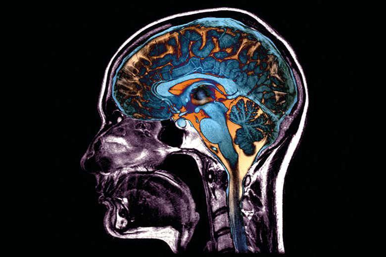 اگر ویروس کرونا به مغز برسد...